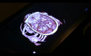 Anatomage_Table_6